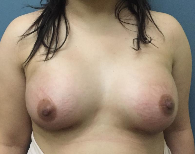 Breast Enlargement, BreastLift, Augmentation Mastopexy, Fat Injection Aesthetic