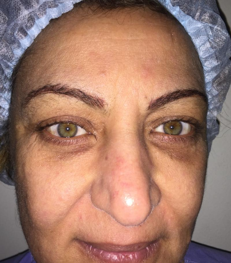 Face Lift Egypt, Neck Lift, Eyelid surgery, Blepharoplasty, Buccal Fat removal