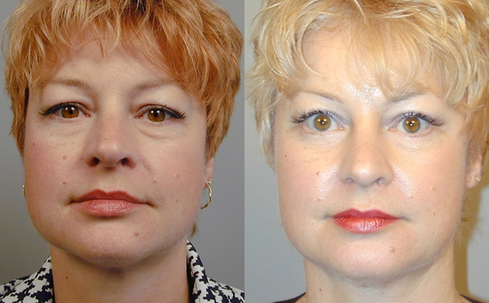 Fat Injection Face Lift, Stem Cell Face Lift, Nano fat injection face lift