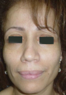 Sunken Cheeks, Fillers, Restylane, BioAlcamid, face Lift, Teoxane, Best cosmetic