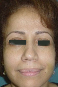 Sunken Cheeks, Fillers, Restylane, BioAlcamid, face Lift, Teoxane, Best Plastic
