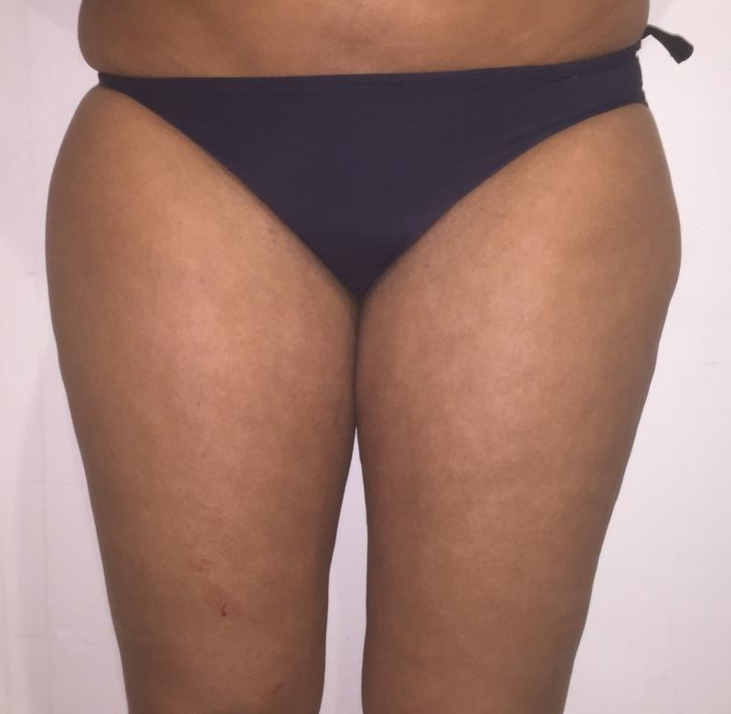 Thigh Liposuction, Thigh Laser Liposuction, Hip Laser Liposuction, Best Cosmetic
