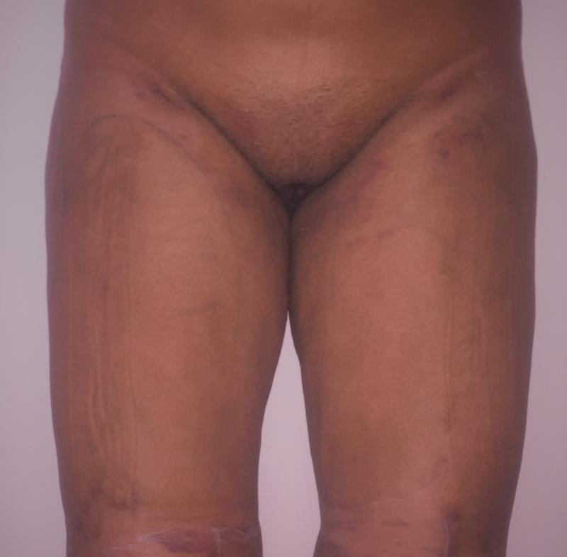Thigh Liposuction, Thigh Laser Liposuction, Hip Laser Liposuction, Best Esthetic