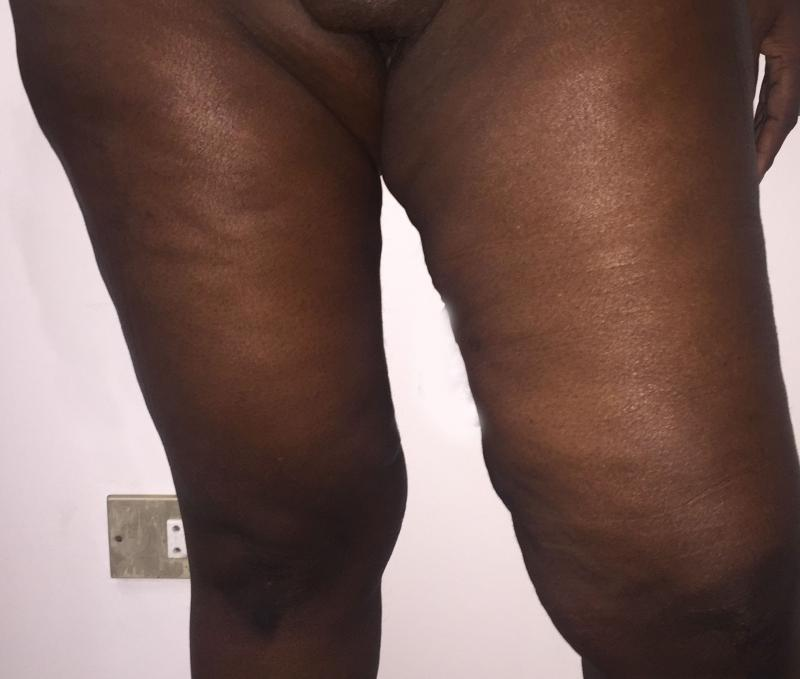 Thigh Lift, Thigh Vaser Liposuction, Sleeve Gastrectomy, Body Lift, Plastic Surg