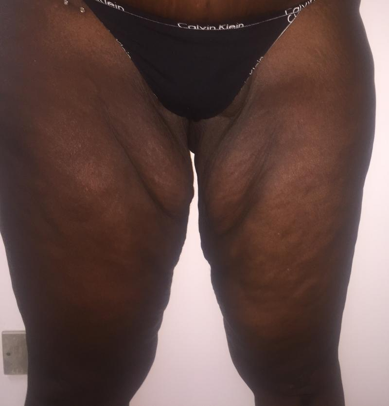 Thigh Lift, Thigh Laser Liposuction, Sleeve Gastrectomy, Body Lift, Cosmetic Sur