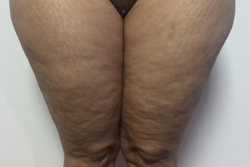 Thigh Vaser 4 D Liposuction, Inner thigh Liposuction, Hips Liposuction, Cosmetic
