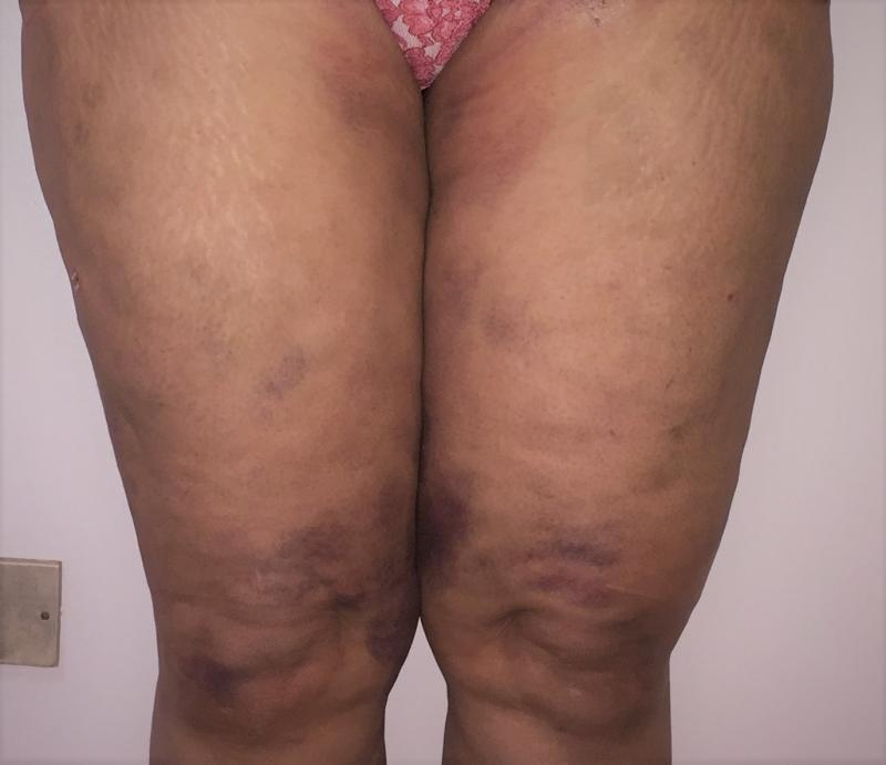 Thigh Vaser 4 D Liposuction, Inner thigh Liposuction, Cellulite removal, Cosmeti