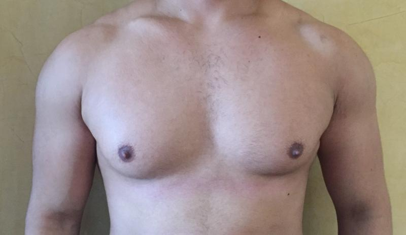 Fatty Gynecomastia, Discoid Gynecomastia, Male Breast reduction, 4D Vaser, Cosme