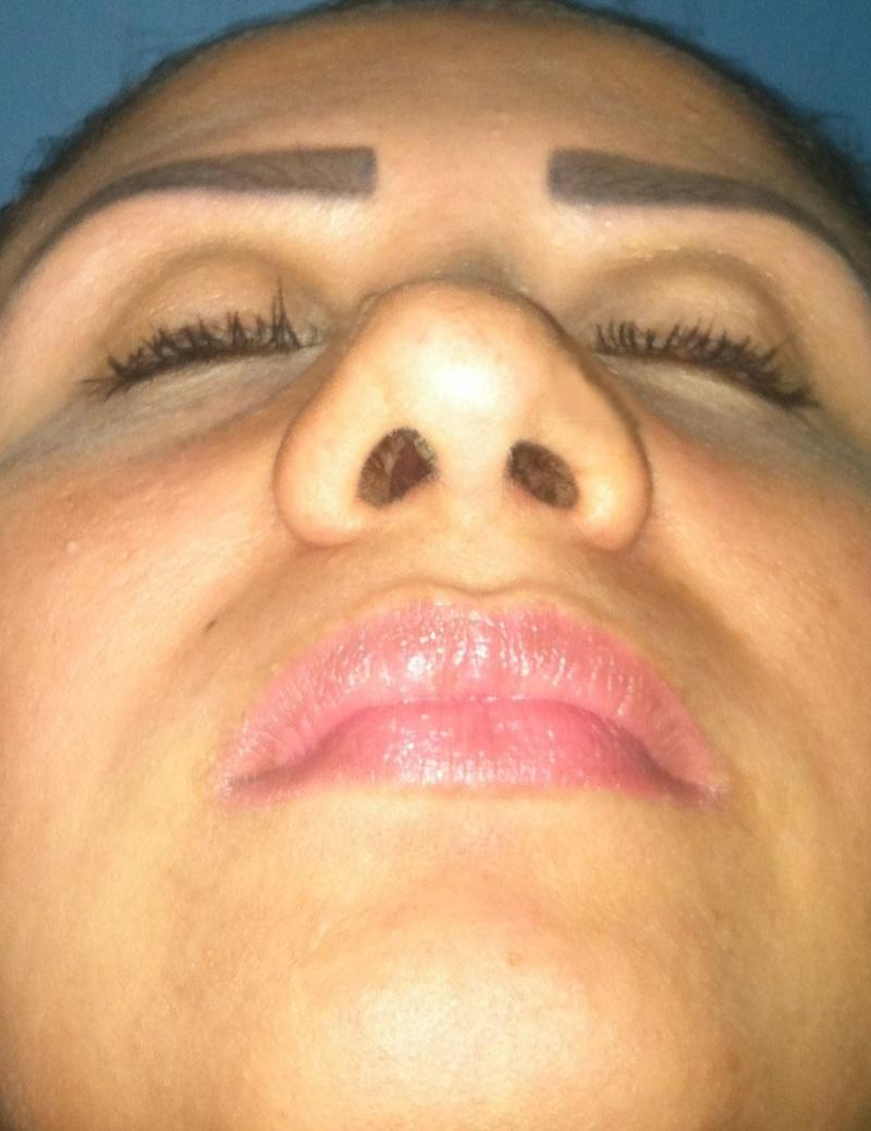 Nose Job Egypt, Openings, Dorsal Hump, Best Cosmetic Surgeon Egypt, Rhinoplasty