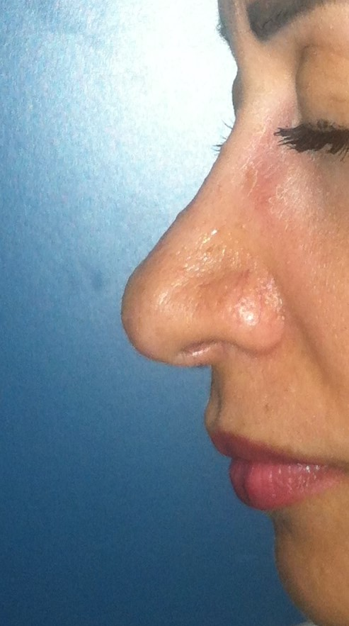 Nose Job Egypt, Boxy tip, Dorsal Hump, Best Plastic Surgeon Egypt, Rhinoplasty