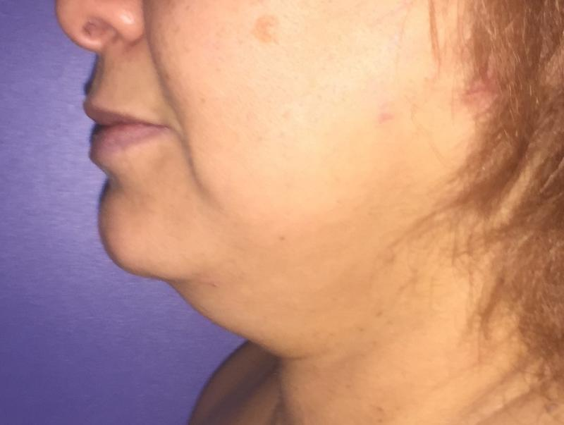 Neck vaser Liposuction, Neck Laser Liposuction, Jaw Line, Neck Lift, cosmetic
