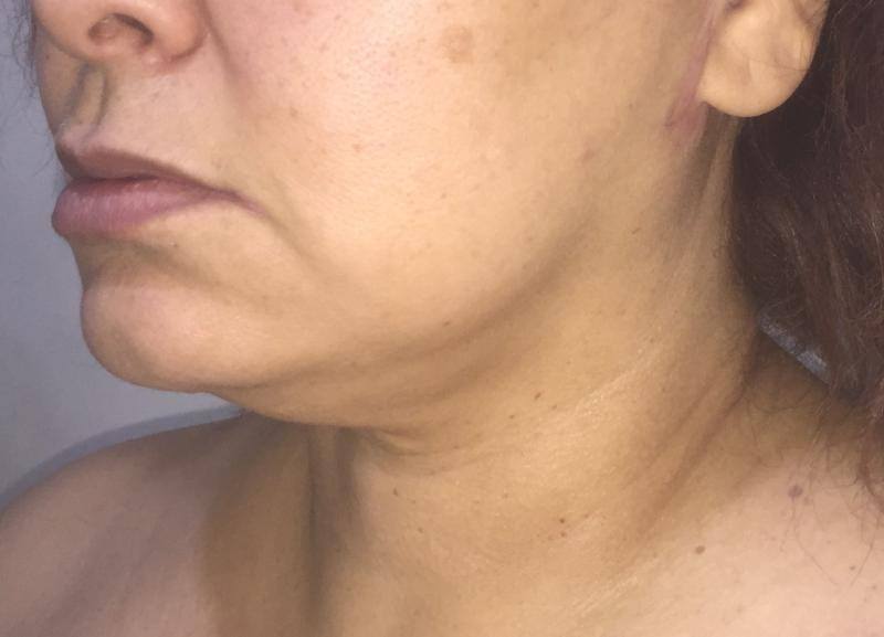 Neck vaser Liposuction, Neck Laser Liposuction, Jaw Line, Neck Lift, Plastic
