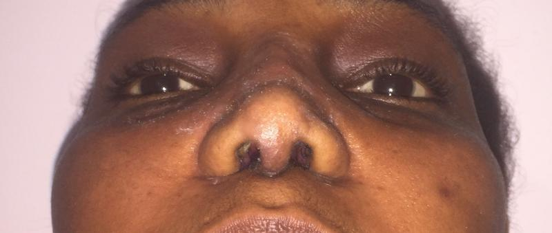 African Nose Job, Rhinoplasty, Wide tip, Nasal Tip, Broad nose Best Cosmetic Sur