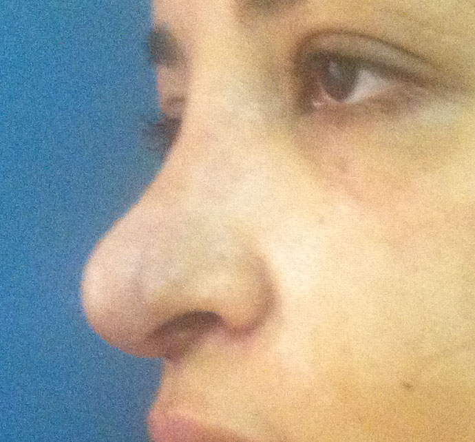 Rhinoplasty, Nose Job, Wide Tip, Boxy Tip, Dorsal Hump, Best Cosmetic Surgery
