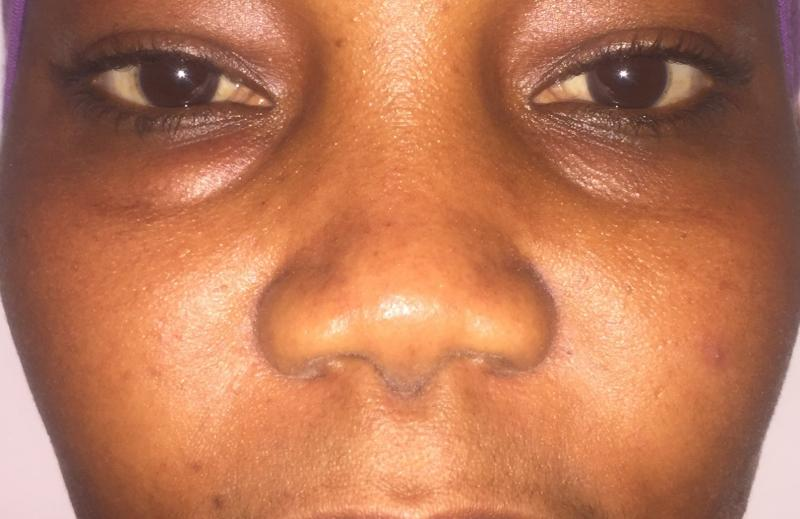 African Nose Job, Rhinoplasty Primary, Wide tip, Nasal Tip, Best Cosmetic Surger