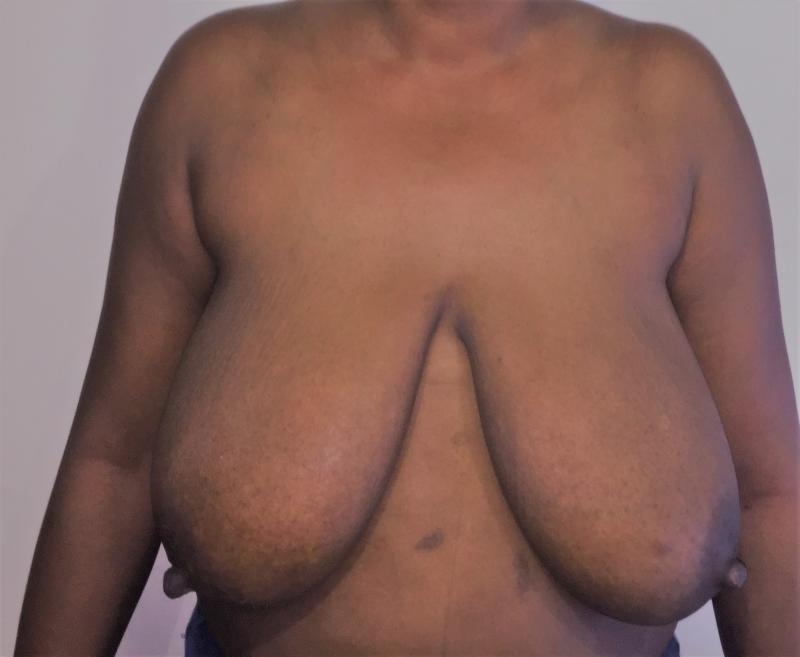 Breast Reduction, Breast Lift, Mastopexy, Reduction Mammoplasty, Cosmetic Surger