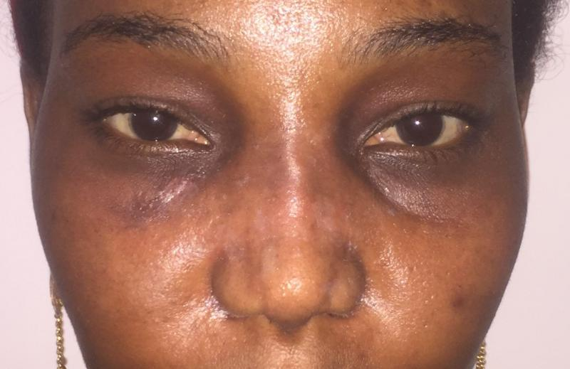African Nose Job, Rhinoplasty Primary, Wide tip, Nasal Tip, Best Plastic Surgery