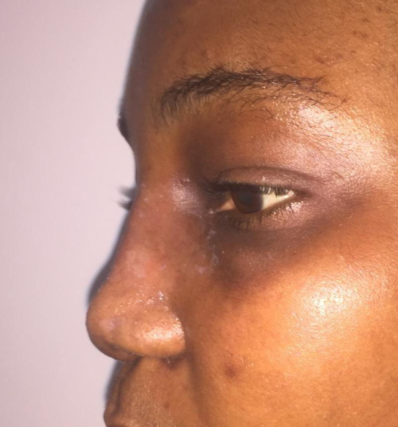 African Nose Job, Rhinoplasty, Wide tip, Nasal Tip, Broad nose Best Aesthetic Su