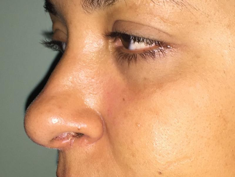 Rhinoplasty, Nose Job, Wide Tip, Boxy Tip, High Tip, Hump, Best Aesthetic Surger