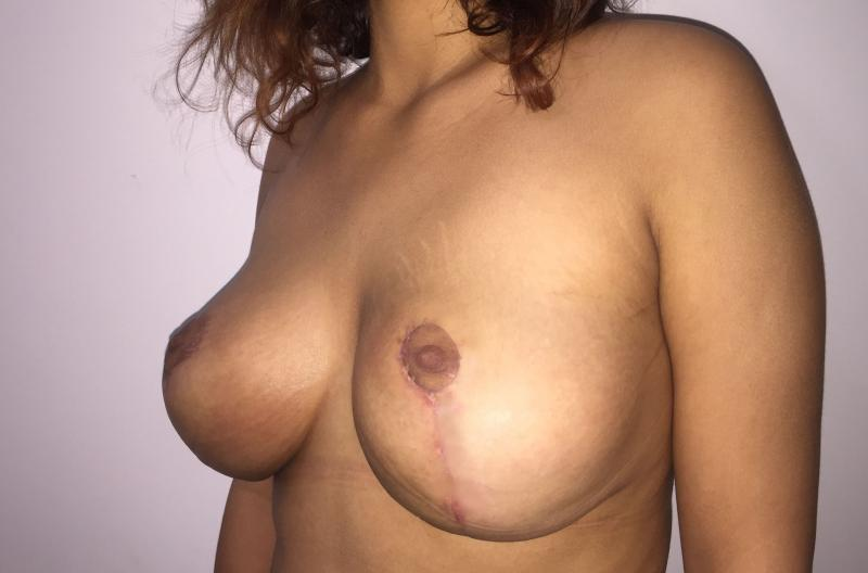Breast Reduction, Breast Lift Reduction, Breast Mastopexy, Best Cosmetic Surgery