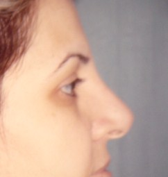 Plastic Surgery Egypt Dr. Adel Wilson liposuction tip nose job bariatric