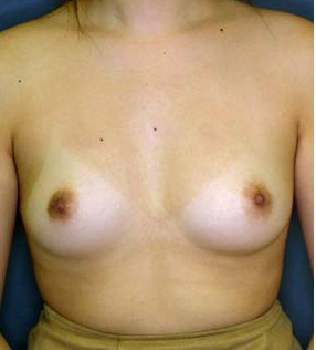 Cosmetic Surgery Egypt, Fat Injection, Fat Grafting, Breast Augmentation, Breast