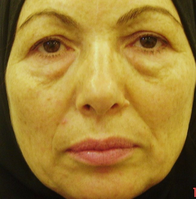 Plastic Surgery Egypt face lift blepharoplasty  eyelid bariatric cosmetic cairo