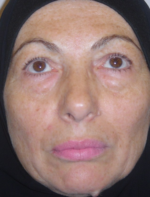 Cosmetic Egypt Surgery Treatment Abroad Face Lift blepharoplasty nasolabial