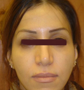 Plastic Surgery Egypt face lift nose restylane eyelid bariatric cosmetic cairo