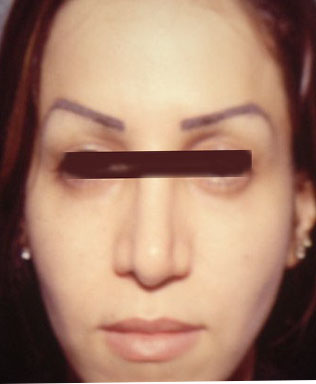 Cosmetic Surgery Egypt fat injection filler restylane botox laser face lift