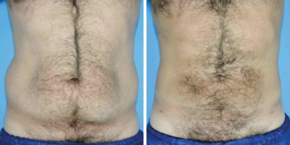 Liposuction,Laser Liposuction,Smart Liposuction,Egypt Cosmetic Surgery,Plastic