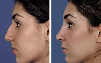 Cosmetic Surgery Egypt,Plastic Surgery Egypt,Nose Job,Dorsal Hump,Nose tip,