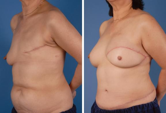 Cosmetic Surgery,Plastic Surgery, Aesthetic Surgery, Egypt, Breast reconstructio