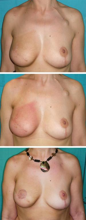Egypt cosmetic surgery,Breast reconstruction,Breast Augmentation,Breast Lift