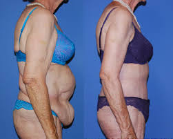 Cosmetic Surgery Egypt, Bariatric surgery, Weight Loss, Tummy Tuck, Abdominoplas