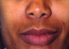 Lip surgery, Lip reduction Surgery, Best Plastic Surgery, Lip Restylane Cosmetic