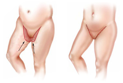 Plastic Surgery Egypt Cairo Cosmetic Body lift liposuction thigh
