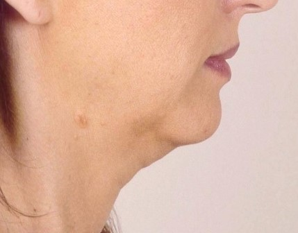 Neck Lift, Neck High Definition 4D Vaser Liposuction, Best Cosmetic Surgery