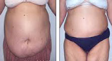 Plastic surgery in Egypt, Abdominoplasty, Tummy Tuck, Sleeve Gastrectomy