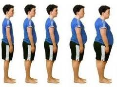 Cosmetic surgery Egypt, morbid Obesity, weight loss, body lift